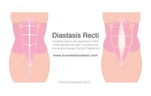 Diastasis-Recti-Abdominis-Burrell